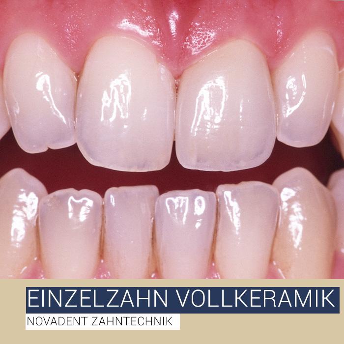 Einzelzahn Vollkeramik - Novadent Zahntechnik Bad Homburg